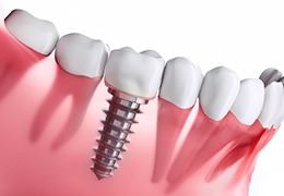 Animation of implant dental crown